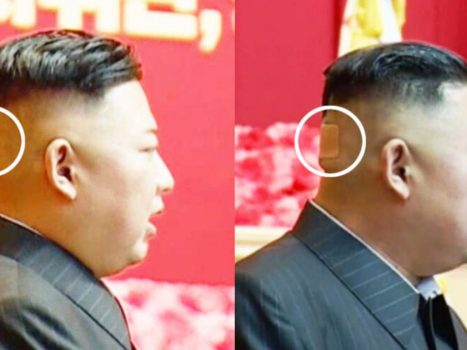 Mystery over Kim Jong Un's health continues to grow: Commander spotted bandage on his head |  abroad